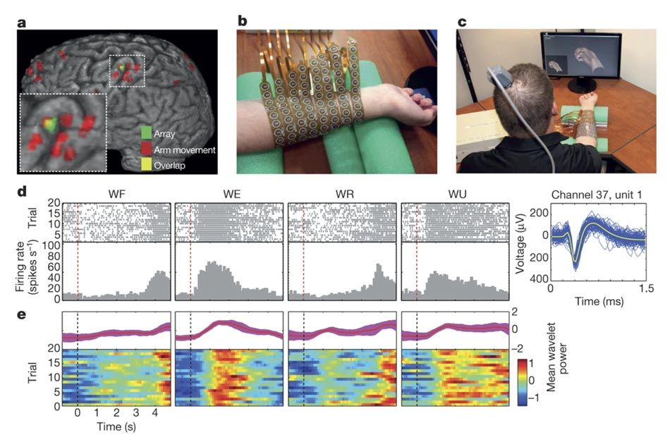 This image is from the 2016 NeuroLife study. In the upper left is an image of the brain that shows the location of the implanted microgrid array. Upper middle shows Burkhart's forearm wrapped in a sleeve of electrodes. Upper right shows Burkhart seated facing a computer monitor. On the monitor is an avatar if his right hand. He is wearing the electrode sleeve. The bottom of the picture shows a series grayscale histograms and multicolor raster readings that correspond to neuron activity when wrist movements were attempted.