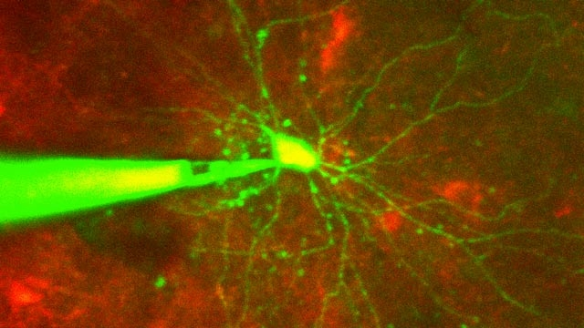 Automated Control of Cellular Neuroscience Experiments with Image Processing