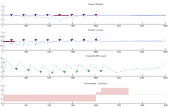 Figure 3. Two ECG signals and one PPG signal showing asystole. Votes are accumulated in the result vector R, with positive values reflecting agreement that no heartbeats are present