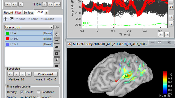 A MATLAB Based, Open-Source Application for MEG/EEG Data Processing