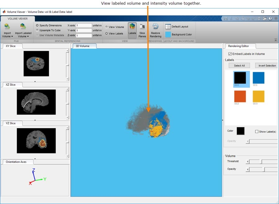 The Volume Viewer app lets you interact with and view 3D volumetric or labeled 3D volumetric data.