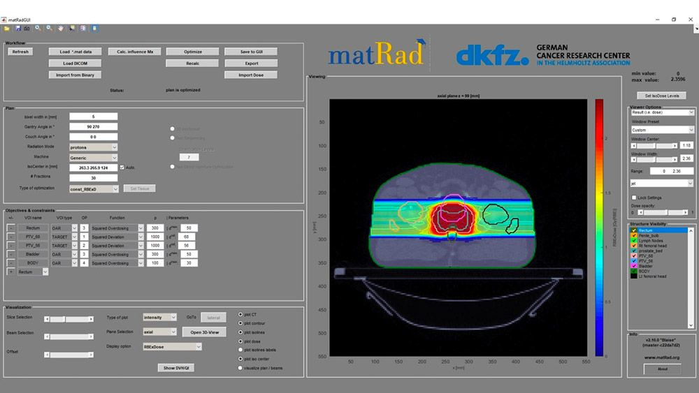 The matRad 2.10.0 interface, with workflow, plan, optimization, and visualization controls.