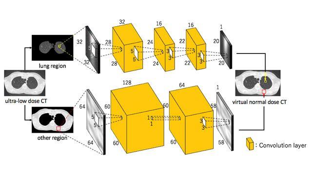 Verwendung von Deep Learning zur Senkung des Strahlenbelastungsrisikos bei der CT-Bildgebung