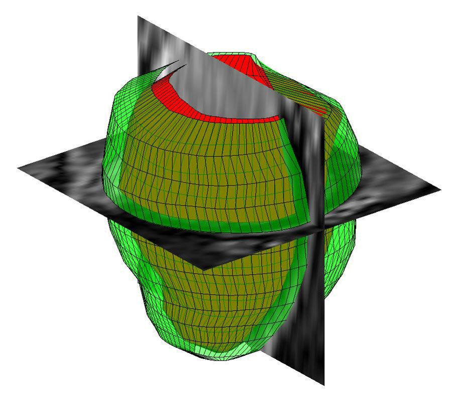Three-dimensional geometrical reconstruction of the human left ventricle from MR images with MATLAB.