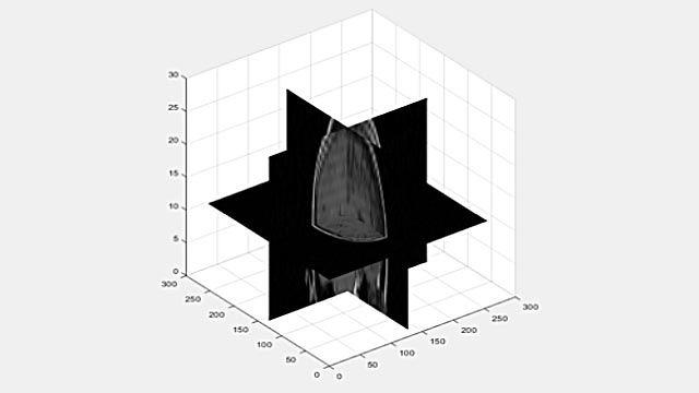 Anzeigen eines 3D-Volumens als 2D-Schichten.