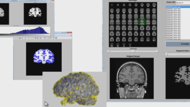 Load an MRI image stack from DICOM files, use segmentation and morphology to identify brain tissue, and create a volume visualization.