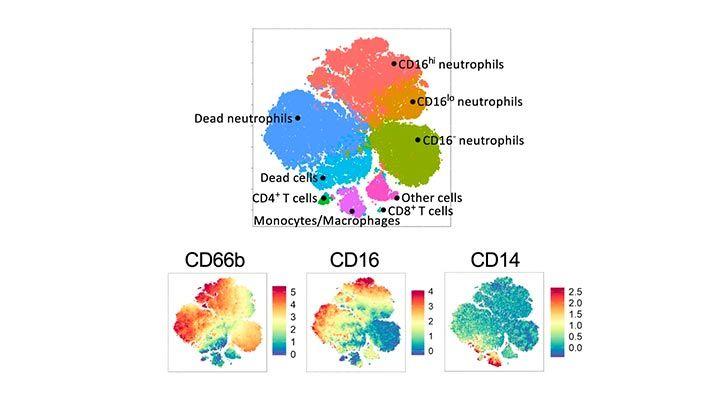 Mathematical model of COVID-19 intervention scenarios for São Paulo—Brazil