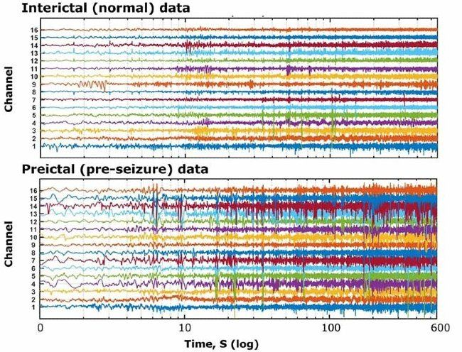 Multiple channels of signal data corresponding to EEG recordings obtained from an epileptic subject, during normal and pre-seizure periods.